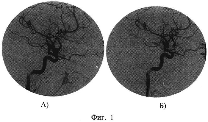 Способ диагностики функционального значения внутренней сонной артерии