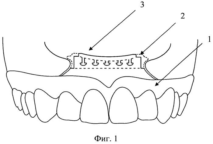 Челюстной протез-обтуратор