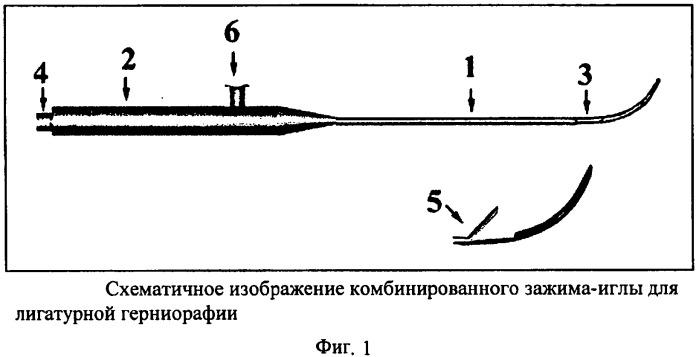 Комбинированный зажим-игла для лигатурной герниорафии