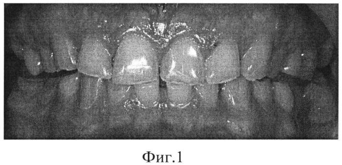 Способ эстетической реставрации зубов