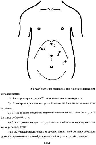 Способ выполнения лапароскопической фундопликации в зависимости от конституционального типа пациента