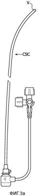 Система получения изображений с кардио-и/или дыхательной синхронизацией и способ 2-мерной визуализации в реальном времени с дополнением виртуальными анатомическими структурами во время процедур интервенционной абляции или установки кардиостимулятора