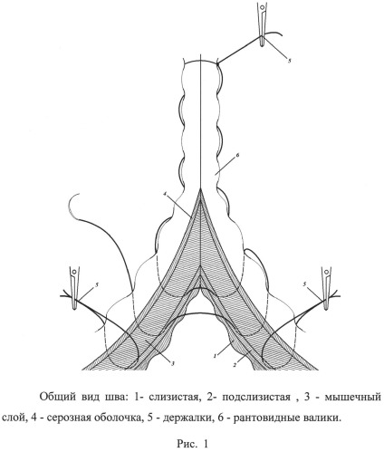 Способ наложения однорядного кишечного шва э.р. тимбакова