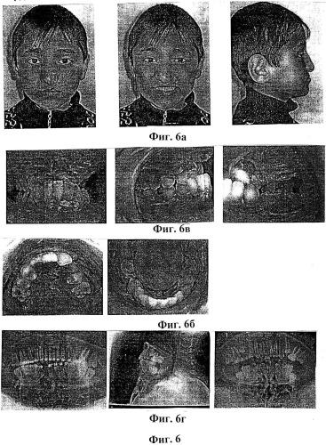 Способ постникова м.а. лечения мезиальной окклюзии, осложненной врожденной расщелиной верхней губы, альвеолярного отростка и твердого и мягкого неба