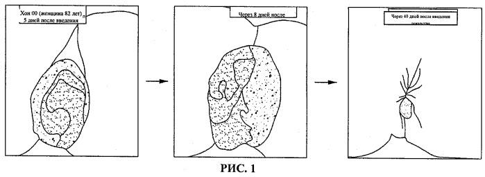 Композиция для инъекций, содержащая гидроксихлорохин, для местного применения при лечении геморроя