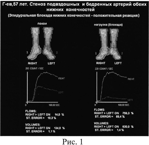 Способ оценки резервов дистального кровообращения конечностей