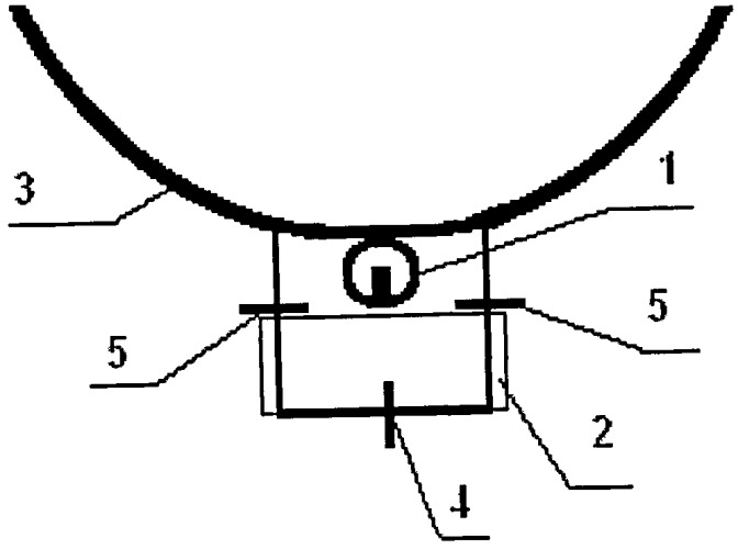 Способ лечения вторичной глаукомы, вызванной эмульгированием силикона