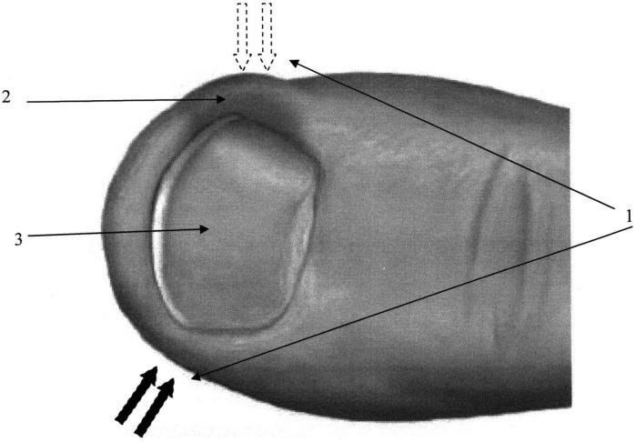 Способ диагностики воспалительного процесса при вросшем ногте