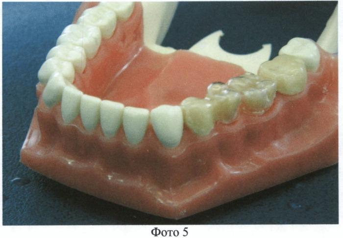 Способ изготовления временного зубного протеза