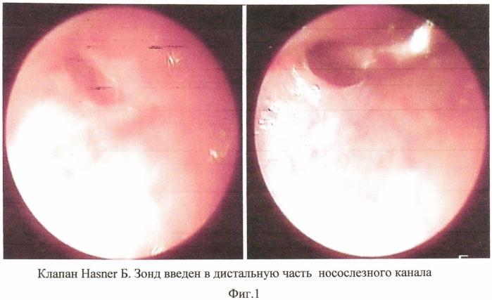 Способ хирургического лечения хронического дакриоцистита