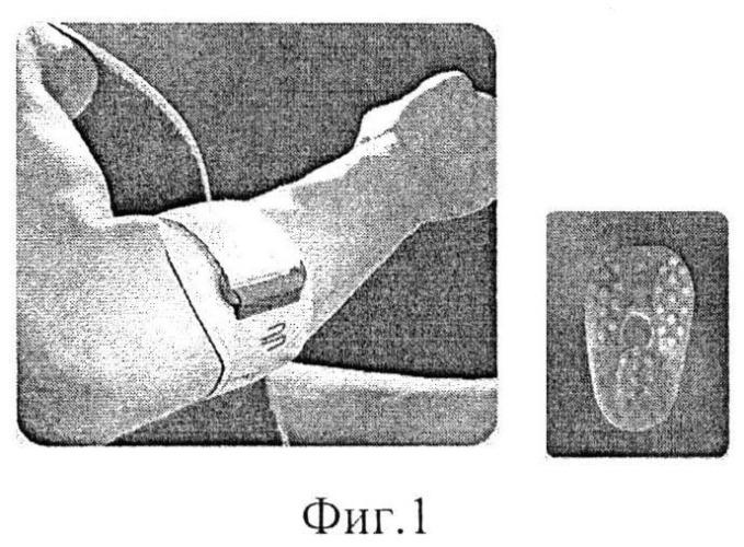 Способ лечения больных с эпикондилитом