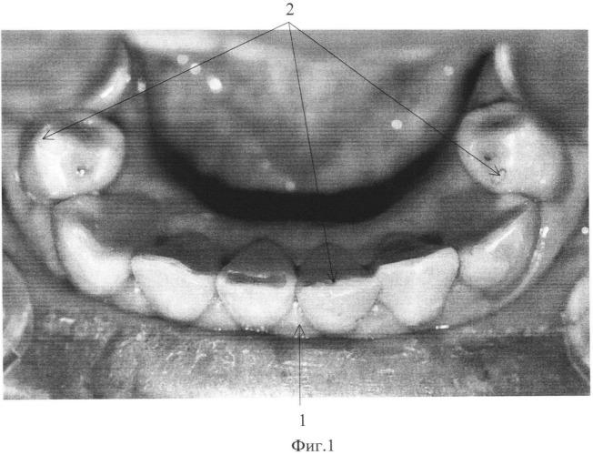 Суставная щель челюсти определить чем лечить воспаление плечевого сустава