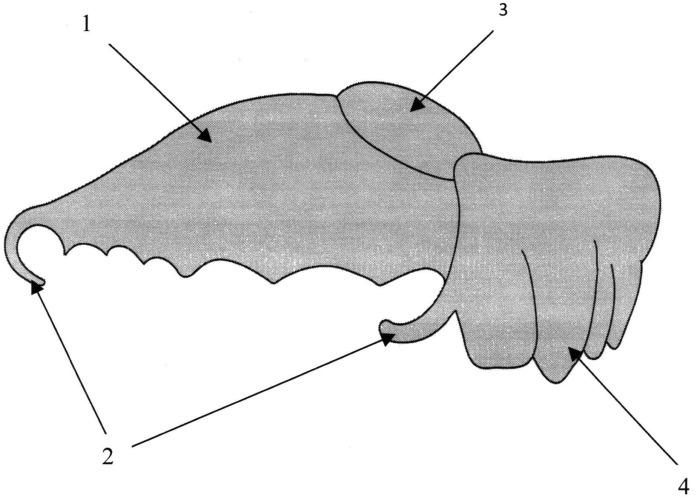 Способ изготовления разобщающего послеоперационного зубочелюстного протеза для верхней челюсти
