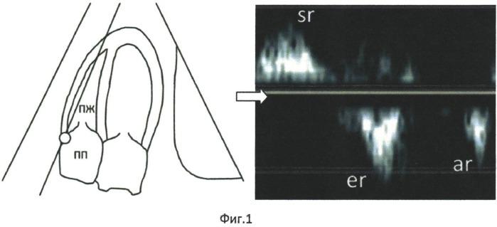 Способ диагностики начальных проявлений систолической дисфункции правого желудочка сердца
