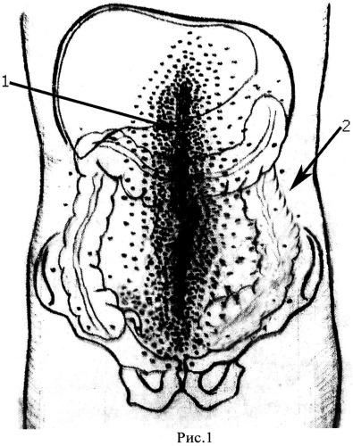 Способ одностороннего хирургического отключения высоких, отграниченных, несформированных, истощающих тощекишечных свищей