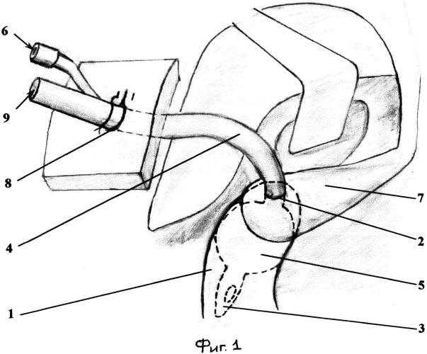 Способ дуоденостомии при несостоятельности культи двенадцатиперстной кишки после резекции желудка по бильрот-ii