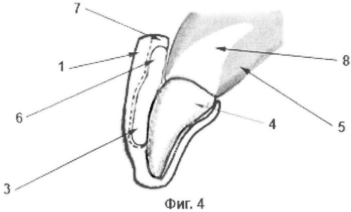 Способ коррекции зубочелюстных аномалий на основе упругого воздействия на апикальную часть корней зубов корректирующими капами и система корректирующих эластичных кап