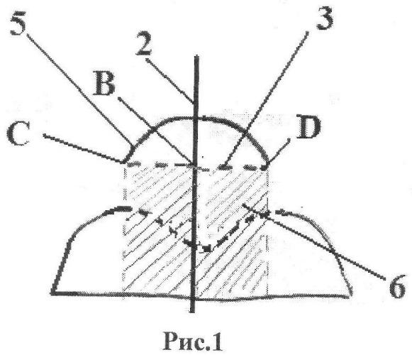 Способ ультразвукового определения величины латеральной дислокации надколенника