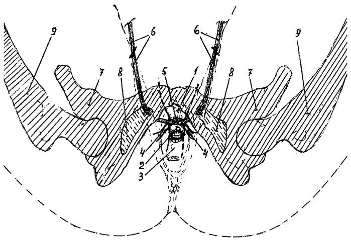 Способ коррекции пролапса гениталий в сочетании с элонгацией шейки матки