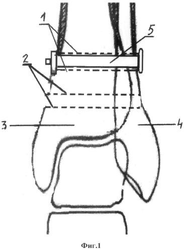 Способ хирургического лечения разрыва связок голеностопного сустава