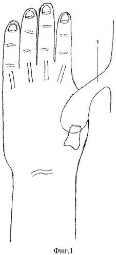 Способ реконструкции первого пальца при тотальных дефектах лучевого края кисти