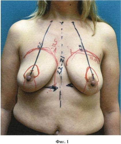 Способ коррекции объема и формы молочной железы при мастоптозе