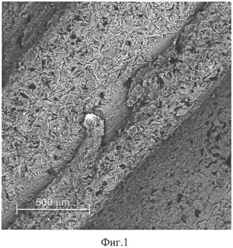Биоинтегрируемый композитный материал и способ формирования покрытия на изделиях медицинского назначения с использованием биоинтегрируемого композитного материала
