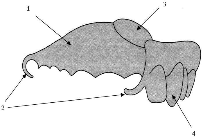 Разобщающий послеоперационный зубочелюстной протез
