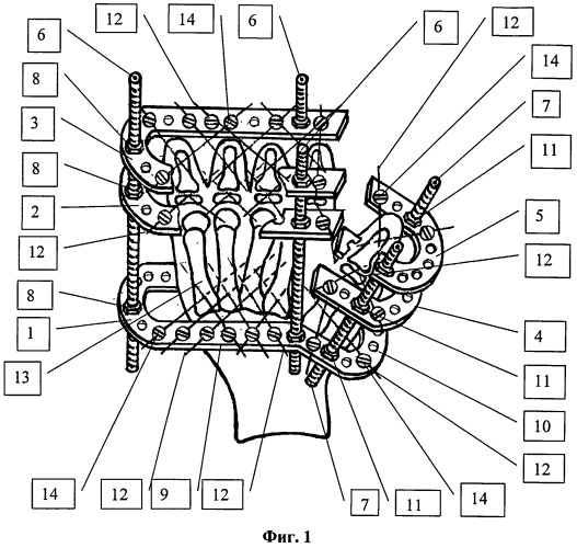 Дистракционный аппарат для формирования пальцев кисти у детей