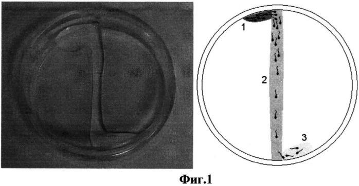 Способ селекции сперматозоидов для экстракорпорального оплодотворения