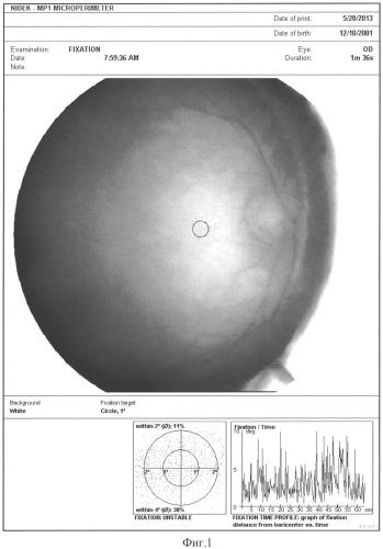 Способ оценки эффективности лечения оптического нистагма с использованием микропериметрии
