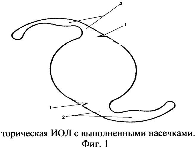 Способ повышения ротационной стабильности торических интраокулярных линз