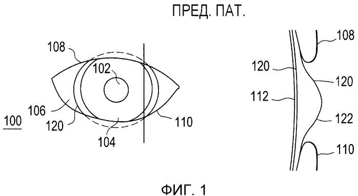 Динамические жидкостные зоны в контактных линзах