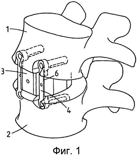 Устройство для стабилизации позвоночника, способ и набор для его имплантации
