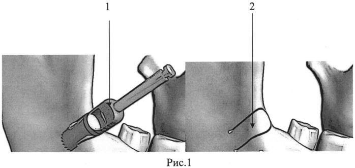 Способ костной пластики при атрофии альвеолярной костной ткани челюстей