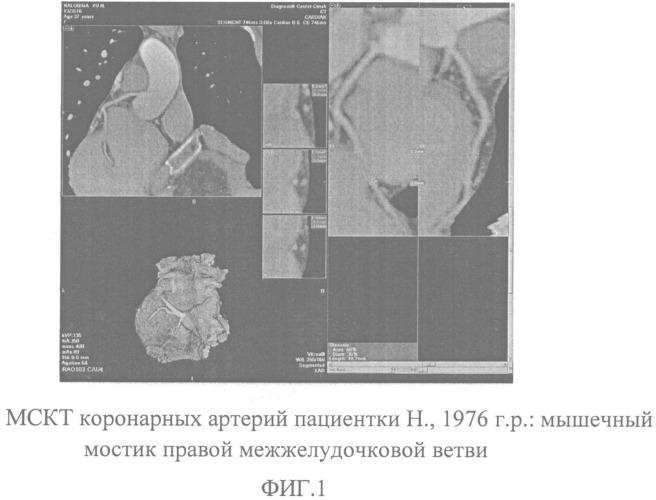Способ контроля частоты сердечных сокращений перед процедурой мскт коронарных артерий ингибитором if-каналов синусового узла ивабрадином пациентов молодого возраста с дисфункцией автономной нервной системы на фоне наследственных нарушений соединительной ткани