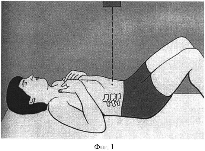 Способ прицельной рентгенографии пояснично-крестцового отдела позвоночника с функциональной нагрузкой