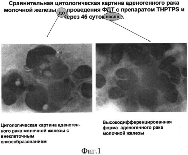 Способ фотодинамической терапии онкологических заболеваний