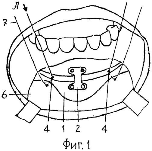 Способ выполнения хирургической операции гениопластики