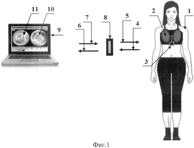 Способ и устройство для полуавтоматического диагностирования патологий молочных желез