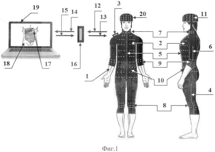 Способ и устройство для полуавтоматического диагностирования патологий тела пациента