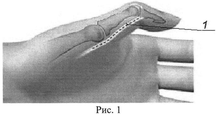 Способ устранения сгибательно-приводящей контрактуры первого пальца кисти у больных с детским церебральным параличом