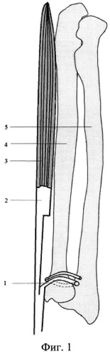 Способ оперативного анатомо-функционального восстановления лучезапястного сустава при повреждении лучевой кости