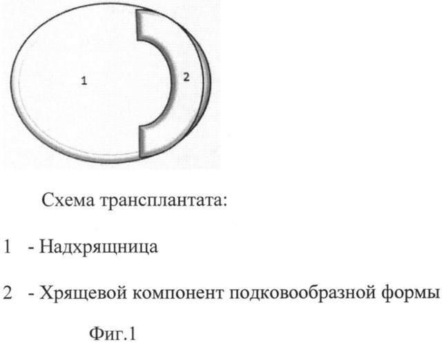 Способ формирования неотимпанальной мембраны при субтотальных дефектах барабанной перепонки