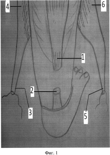 Способ хирургического лечения застарелого разрыва ахиллова сухожилия