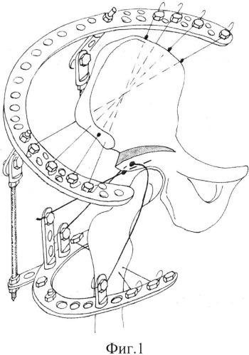 Способ реконструкции вертлужной впадины при дисплазии тазобедренного сустава