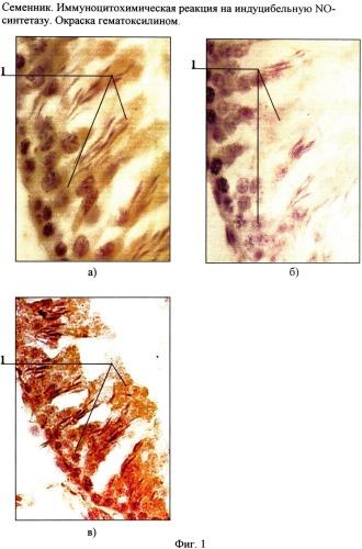 Способ коррекции тестикулярной дисфункции у крыс, индуцированной адаптацией организма к низким сезонным температурам