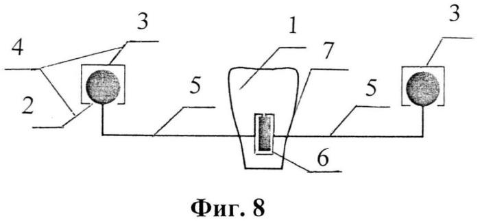 Кламмерная система куретовых для частичного съемного протеза при одиночно стоящем зубе