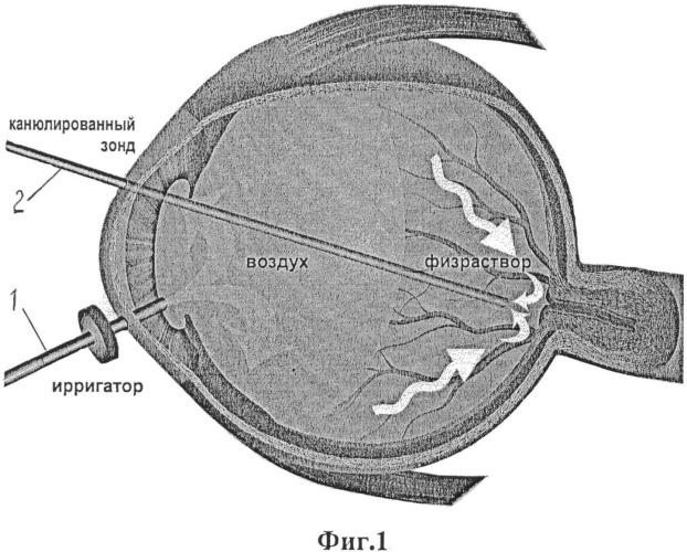 Способ хирургического лечения авитрии