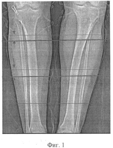 Способ определения локальной плотности корковой пластинки длинных костей